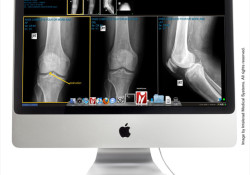 Intelerad Medical Systems announced the availability of InteleViewer™ for Mac, intended for radiology groups who wish to provide fully-featured image and report access to referring physicians with a Mac preference. InteleViewer for Mac supports the entire range of Mac systems running Mac OS X Snow Leopard® – from MacBook® notebooks […]